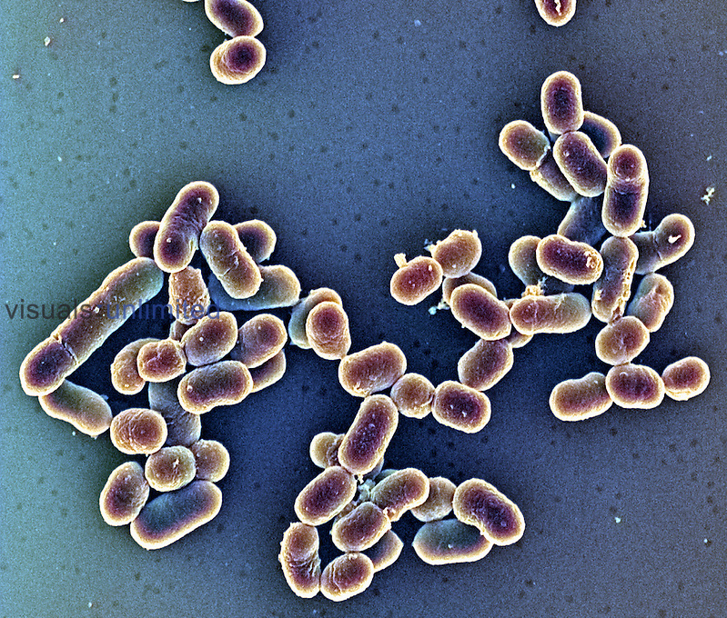 Listeria monocytogenes Bacteria are opportunistic pathogens that can cause listeriosis, meningitis, and spontaneous abortions. SEM
