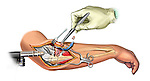 Ulna and Radius Internal Fixation; this medical illustration illustrates the ulna and radial internal fixation.