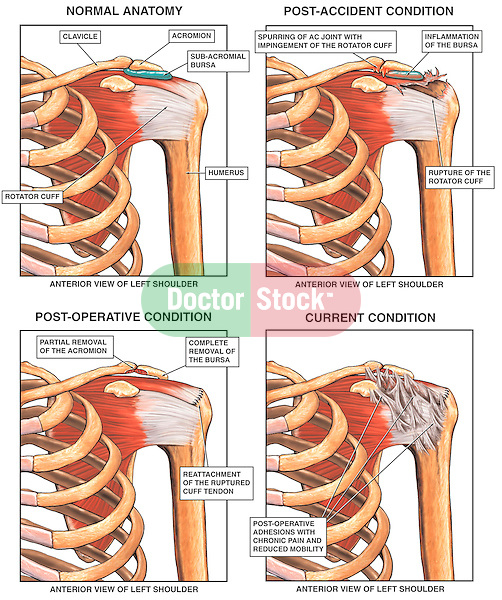 how to get rid of bone spurs in shoulder