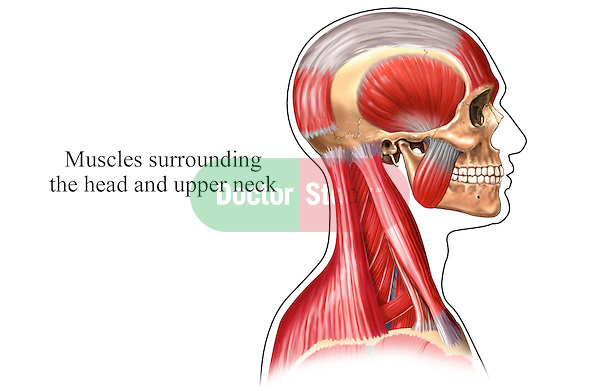 This medical exhibit depicts the muscles surrounding the head and neck shown from a lateral (side) view which are involved in the origins of a tension headache. This single image pictures the lateral skull, its muscles and fascia, the cervical (neck) musculature and the musculature of the upper shoulders and back. A single label reads muscles surrounding the head and upper neck.