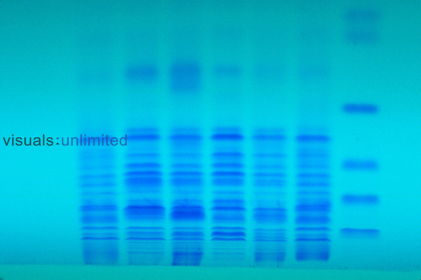 Electrophoresis of proteins shown by the blue bands in Polyacrylamide
