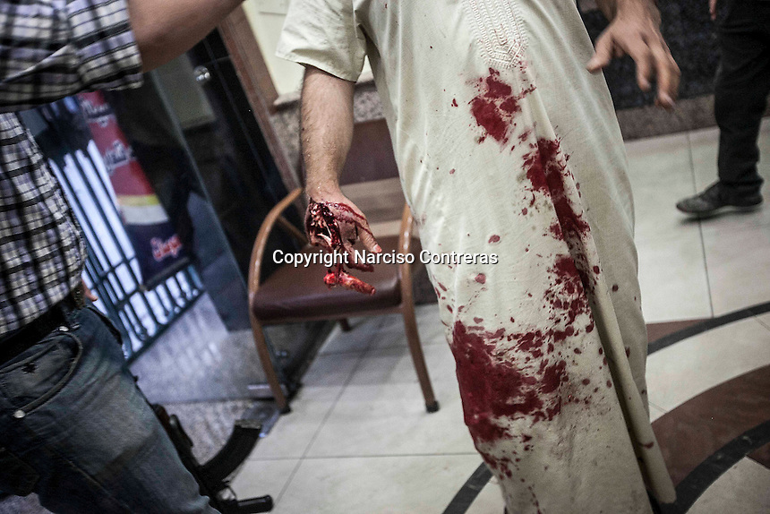 A Syrian civilian arrives at the hospital to get medical treatment after was shot at th hand by sniper in the streets of Aleppo City. The Hospital located at the northeast area of the City receives by day dozens of wounded civilians after being injured by aircraft shelling, sniper or street fighting.