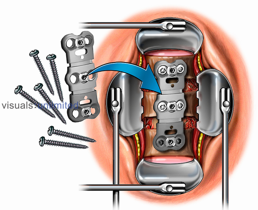 Biomedical illustration of an anterior cervical discectomy involving placement of cervical plates and screws for fusion.