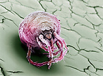 A plant mite. SEM X170.