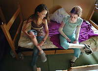 Cristina and friend Jessica Simpson age 26 of Virgina, sit on Simpson's bed at Camp Wonder, a camp for kids with EB, talking about their symptoms. Jamie Scott Lytle Photography