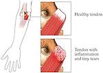 Medial Epicondylitis  of the Elbow
