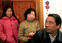 11 year old Liu Fangyuan (Yuan Yuan) stands beside her father Liu Yuanlin and neighborhood friend 10 year old Wang Yin at her family's tiny apartment in Nanjing, China. In 2002, Yuan Yuan's aunt poured sulfuric acid on her face after losing a housing dispute with Yuan Yuan's father. The attack blinded and seriously disfigured Yuan Yuan, while her aunt is serving a life sentence in prison, Yuan Yuan and her family awaits a controversial face transplant...PHOTO BY SHEN / SINOPIX