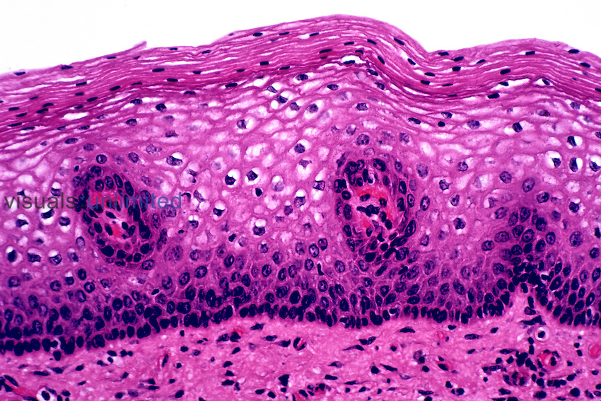 Cervical mucosa cross-section, H&E stain. LM X80.