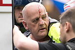 "© Joel Goodman - 07973 332324 . 11/06/2017 . Manchester , UK . A demonstrator with blood on his head is detained and put in to the back of a police van as far-right protesters continue to fight with police after the end of the demonstration . Demonstration against Islamic hate , organised by former EDL leader Tommy Robinson's "" UK Against Hate "" and opposed by a counter demonstration of anti-fascist groups . UK Against Hate say their silent march from Piccadilly Train Station to a rally in Piccadilly Gardens in central Manchester is in response to a terrorist attack at an Ariana Grande concert in Manchester , and is on the anniversary of the gun massacre at the Pulse nightclub in Orlando . Photo credit : Joel Goodman"