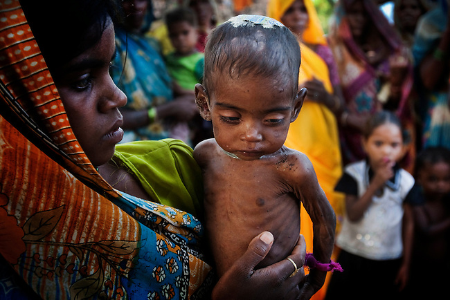 20 year old Jhanki shows off her malnourished and wasting 9 month old baby girl Roshini in Silanagar village outside Shivpuri, Madhya Pradesh state in India. Despite 15 yeas of economic growth the incidence of child malnutrition has barely changed -- 46 percent of children under 5 in India are malnourished: twice the rate of sub Saharan Africa.. A report released last week said a mixture of poor governance , the caste system dis-empowerment of women and superstition are preventing children from getting the nutrition they need, condemning another generation to brain damage, low earning potential and early death. At the moment 3000 children a day die in India as a result of malnutrition.
