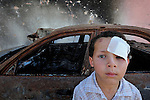 A boy injured in fighting in Misrata, Libya, which has been torn by months of war between rebels and troops loyal to strongman Moammar Gadhafi.