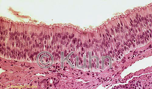 CZ25-001b  Nasal Epithelium - striated squamous  250x