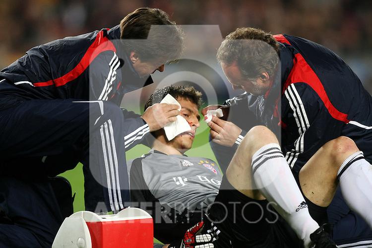 Bayern Munchen's Hans Jorg Butt injured during the UEFA Champiosn League match.April 8 2009. (ALTERPHOTOS/Acero).