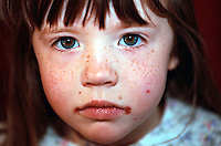 A young child with facial impetigo. Lesions usually form on the face and spread locally. The disorder is highly contagious by contact with the discharge from the lesions. This image may only be used to portray the subject in a positive manner..©shoutpictures.com..john@shoutpictures.com