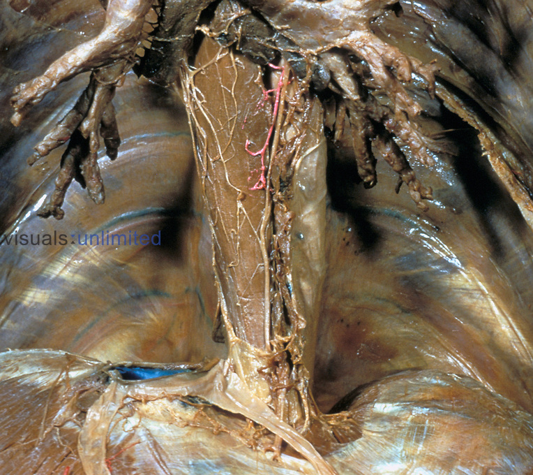 Cadaver dissection of the esophagus and esophageal plexus.