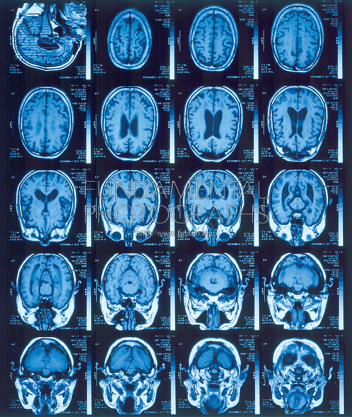 MRI OF BRAIN<br /> Magnetic Resonance Imaging<br /> Showing a brain diagnosed with Alzheimer's Disease. MRI uses the magnetic dipole of some of the protons in the nuclei of the subject being examined.