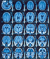 MRI OF BRAIN<br />
