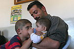 Adham Takatka, 6, kisses his brother Mohammed, 8 months hold by his father Ahmed Takatka in their home in the village of Marak Mu' Ala in the Bethlehem district, West Bank. Adham had a transplant of bone marrow received from his young brother Mohammed in the Hadassah Hospital.  Photo by Quique Kierszenbaum