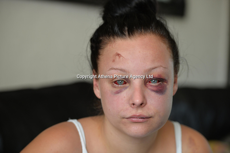 """Pictured: Jenna Thomas after she was attacked<br /> Re: A 22 year old mum says she is """"terrified to go home"""" after she says she was strangled and severely beaten by her partner of four months.<br /> Jenna Louise Thomas, of Crindau, Newport, says the prolonged attack by her partner, Jamie Webber, on Sunday night was witnessed by her four-year-old son.<br /> She has been left with two black and bloodshot eyes and a swollen face.<br /> Miss Thomas, who is also known as Jenna Francis, says Jamie Webber is now on the run.<br /> Gwent Police confirmed that they are actively looking for him and have warned people not approach him."""
