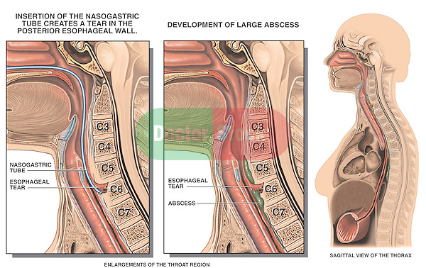 This exhibit features comparative cut-away views of the head and neck region following the perforation of the posterior esophageal wall during placement of a nasogastric tube. The initial view shows the perforation site and tube penetrating the muscular layers, the second view reveals the development of an abscess secondary to infection.