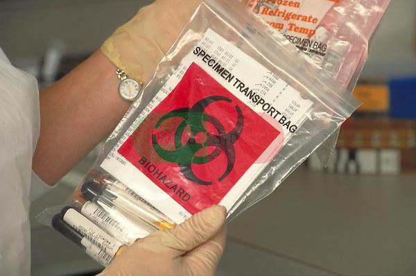 gloved hands holding biohazard bag for transporting specimens