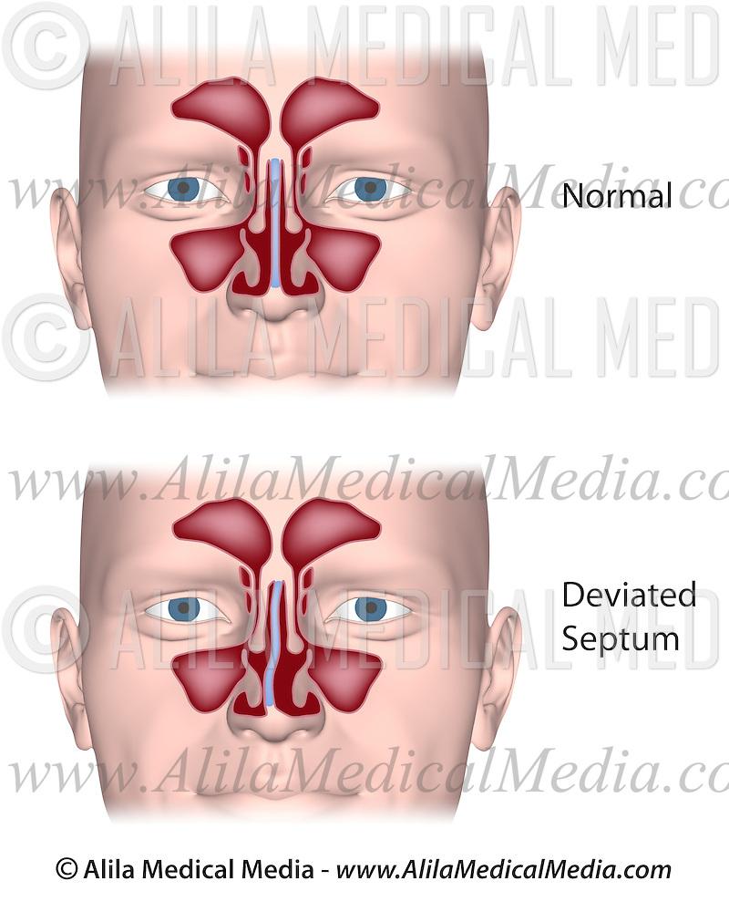 Deviated Nasal Septum Alila Medical Images