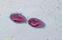 PR02-020z  Paramecium - splitting - Paramecium caudatum  250x