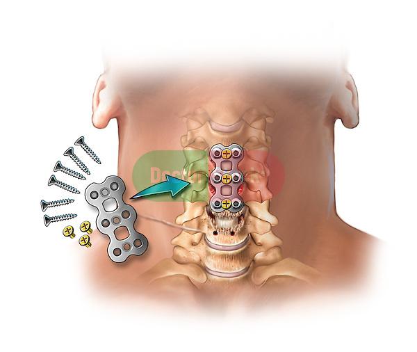 C3-4, C4-5, C5-6 bone fusion-postop