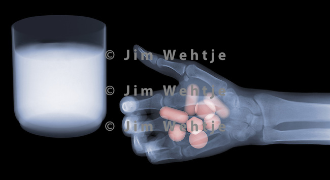 X-ray image of hand, pills, water (color on black) by Jim Wehtje, specialist in x-ray art and design images.