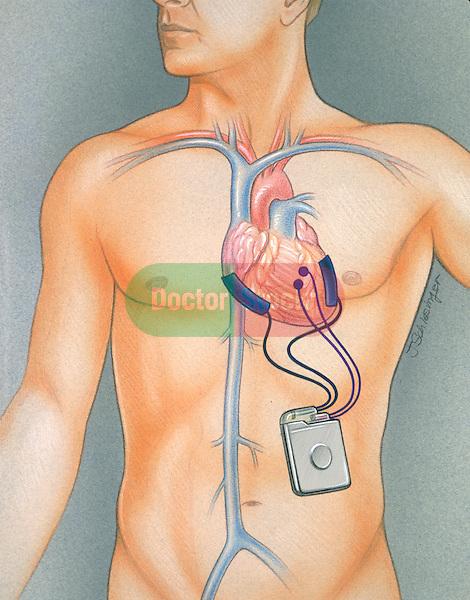 AICD pulse generator