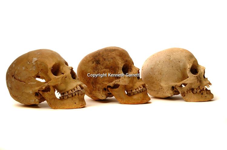Nubian Skulls, Black Pharaohs, Nubians, Egypt, Aswan, Hierakonpolis, 11th dynasty Nubian cemetery, Renee Friedman