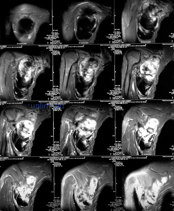 An MRI (magnetic resonance image) scan. Primarily used in radiology as way of visualising the structure and function of the body. The detail of the imagery makes MRI especially useful in musculoskeletal, neurological, oncological and cardiovascular imaging. Royalty Free