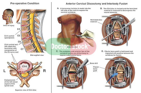 Spine Surgery - Anterior C5-6 Discectomy (Diskectomy) and Interbody Spinal Fusion.