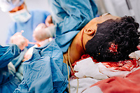 A young gang member, with a gunshot wound to the head, lies on the strecher during the life-saving surgery in the operating room of a public hospital in San Salvador, El Salvador, 16 December 2015.