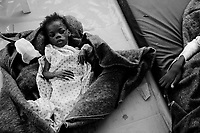 Port Au Prince, Haiti, Jan 27 2010.A severely malnourished street child. MSF France has set up a 180 beds field hospital in Delmas 33, featuring two surgical units, it will operate for a year..