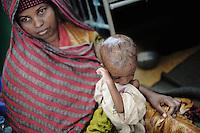 Mogadishu/Somalia 2012 - Malnutrition Center in  Banadir Hopsital.