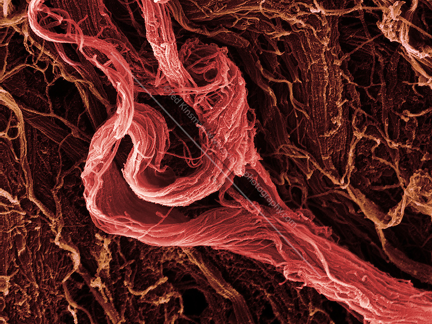 sem human muscle tissue | sciencephotography, Muscles