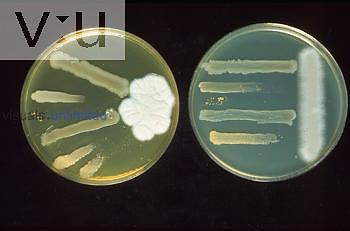 Penicillin - Reconstruction of Fleming Plates