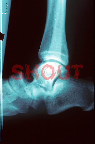 An x-ray of a forefoot ( mid-tarsal ) dislocation. This image may only be used to portray the subject in a positive manner..©shoutpictures.com..john@shoutpictures.com