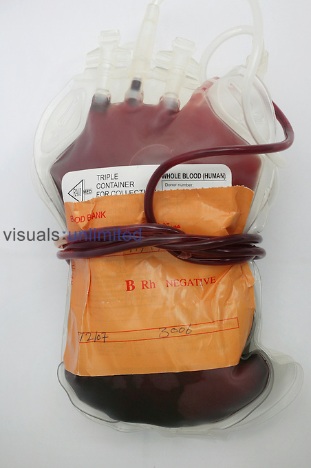 Blood bag containing type B- (Negative) blood...B- blood contains anti-b antibodies and  a antigens are present. There is also a presence of the RhD antigen of the Rhesus blood group system. Royalty Free
