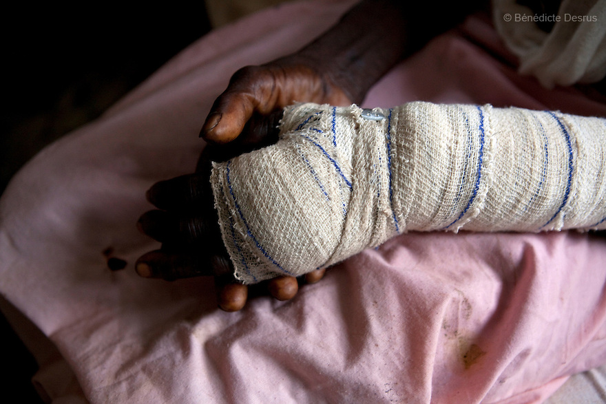 22 may 2010 - Tambura, Western Equatoria State, South Sudan - Tereza Polino recuperates in the Tambura Hospital after the Lord's Resistance Army (LRA) stole her possesions, broke her arm and burnt her home in Zangia, Western Equatoria State. The LRA has attacked a number of roads, villages, and clinics in the area over the last week pushing thousands of people to flee to larger towns for protection. Western Equatoria state has been rocked by LRA activities since 2006. Thousands of people have been forced from their homes as brutal attacks continue against the civilian population in the region and neighboring DRC and CAR. Photo credit: Benedicte Desrus