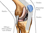 This medical exhibit shows the associated anatomy of the patella from an anteromedial (inner, side) view. Labels identify the patella, patellar tendon (ligament), and prepatellar bursa.