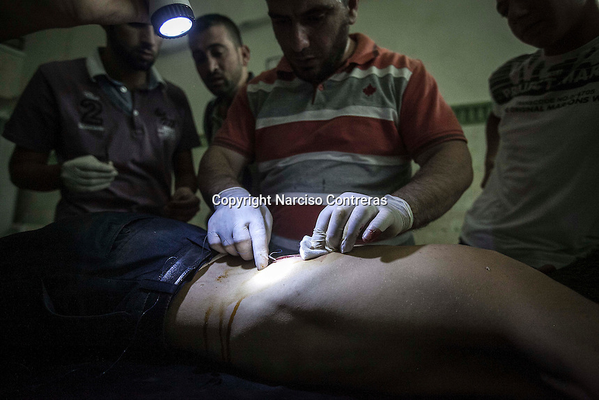A wounded opposition fighter gets medical assistance after get injured in a fighting in Aleppo frontline at one of the improvised hospitals in Aleppo province.