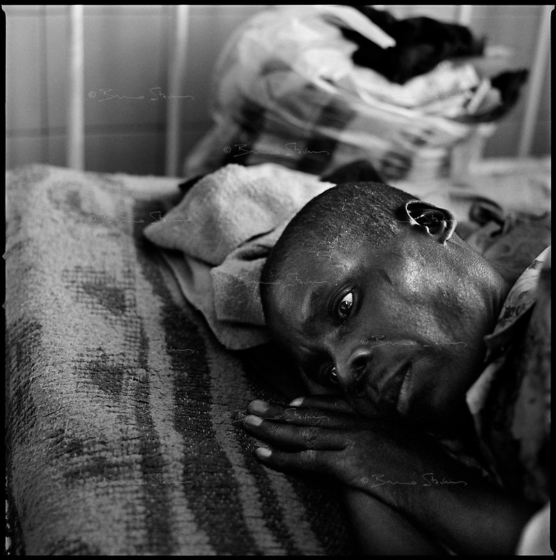 Huambo, Angola, May, 24, 2006.Eduardo Albin, 42. More than 300 TB patients live in Huambo State Sanatorium, hundreds more are outside patients. TB is endemic in the region, fueled by poverty, malnutrition, inadequate hygiene and the rapid spreading of HIV/AIDS since the end of the civil war in 2002.