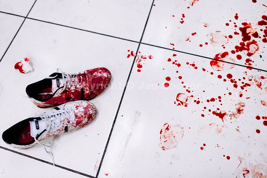 Bloodied sneakers of a deadly injured gang member, lying next to a splash of blood, are seen on the floor of the emergency department of a public hospital in San Salvador, El Salvador, 14 February 2015.