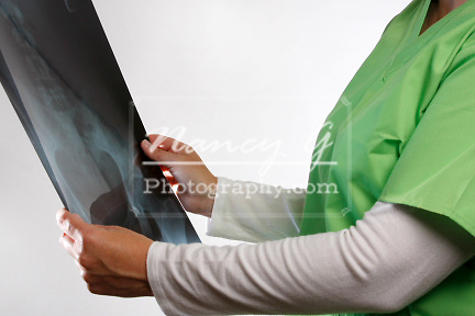 A medical staff reviewing an xray