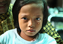 A young girl cries after being circumcised in Bandung, Indonesia on April 23, 2006.  The families of 248 girls were given money to have their children circumcised in a mass circumcision celebration timed to honour the Prophet Mohammed's birthday. While religion was the main reason for circumcisions, it is believed by some locals that a girl who is not circumcised would have unclean genitals after she urinates which could lead to cervical cancer. It is also believed if one prays with unclean genitals their prayer won't be heard. The practitioners used scissors to cut the hood and tip of the clitoris. The World Health Organization has deemed the ritual unnecessary and condemns such practices.