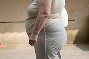 side view of an obese middle aged woman