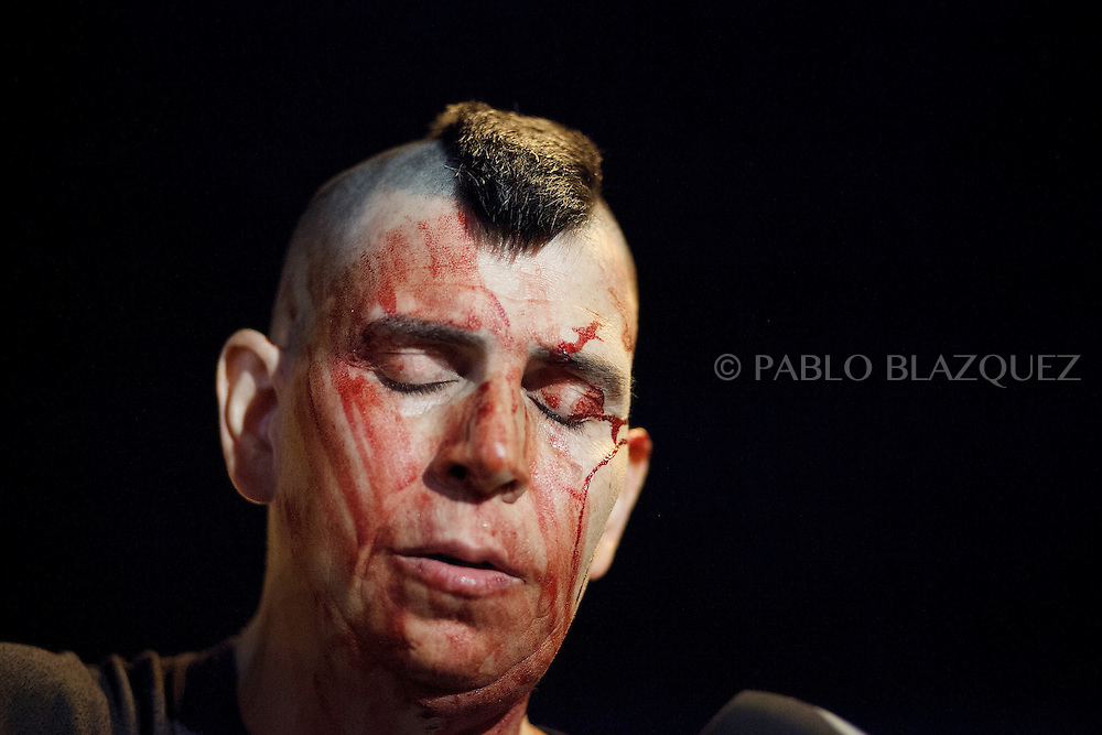 A protestor is bleeding after clashes with riot police in Cibeles Square during a demonstration against the Spanish government, on Thursday, July 18, 2013, in Madrid, Spain. Thousands demonstrators demanding the resignation of Prime Minister Mariano Rajoy and its party gathered in front of the People's Party headquarter. Rajoy rejected demands to resign after more alleged secret payments and test messages related to former political party treasurer Luis Barcenas under investigation appeared. The spectacle of alleged greed and corruption has enraged Spaniards hurting from austerity and sky high unemployment.