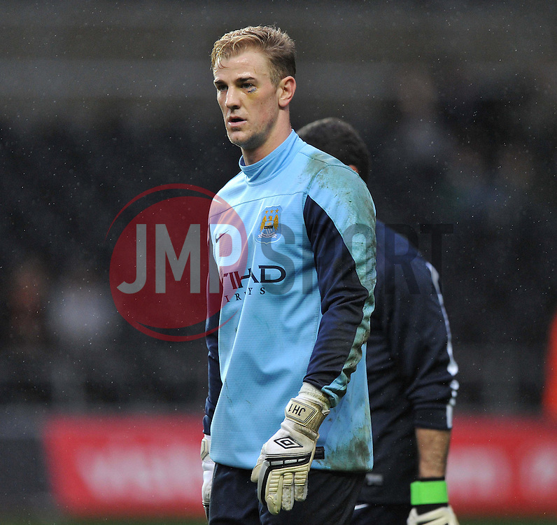 Manchester City's Joe Hart eye looking very painful in warm up. - Photo mandatory by-line: Alex James/JMP - Tel: Mobile: 07966 386802 01/01/2014 - SPORT - FOOTBALL - Liberty Stadium - Swansea - Swansea City v Manchester City - Barclays Premier League